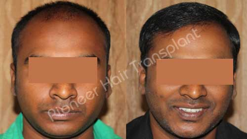 Hair transplant in bangalore marathahalli